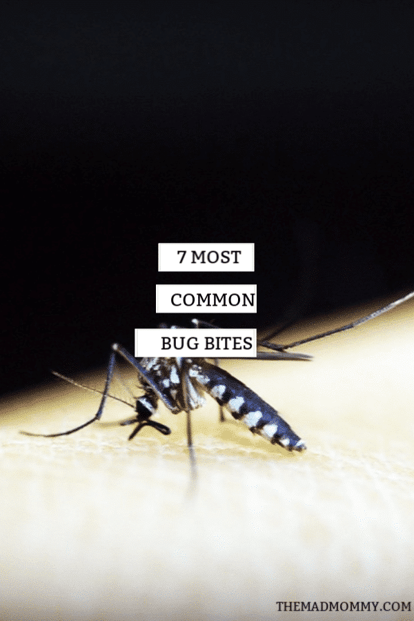 Most common bug bites are usually harmless, but there are some that sneak up on you spreading dangerous diseases like Dengue, Lyme disease, Zika disease, and Malaria. However, the biggest risk in most cases is a secondary infection that stems from the constant scratching. These bugs are not naked to the eye and are active when you are resting. This makes a pest inspection absolutely essential and no bug should be left with no opportunity to hang out in your home.