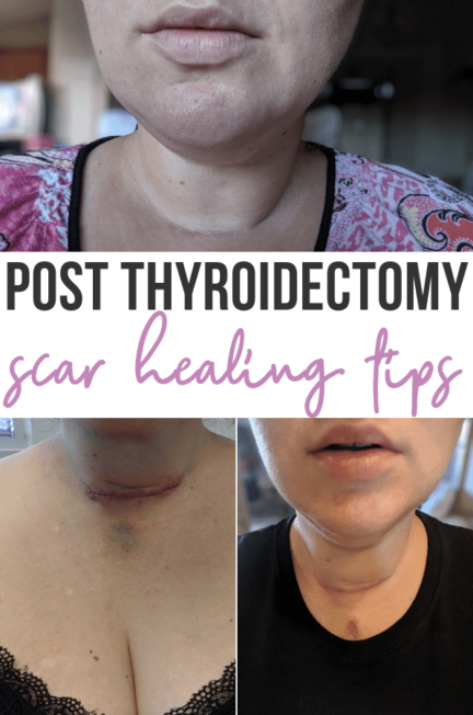 Thyroidectomy: What to Expect