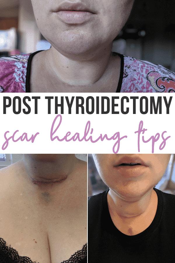 Thyroidectomy Scar Healing Tips