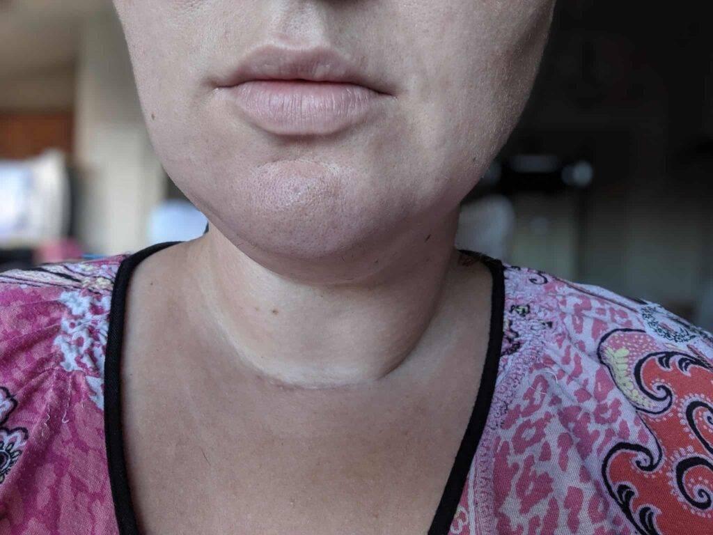 thyroidectomy scars