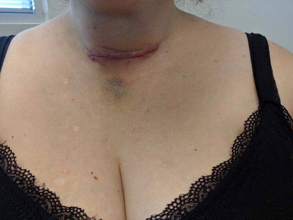 thyroidectomy bruising